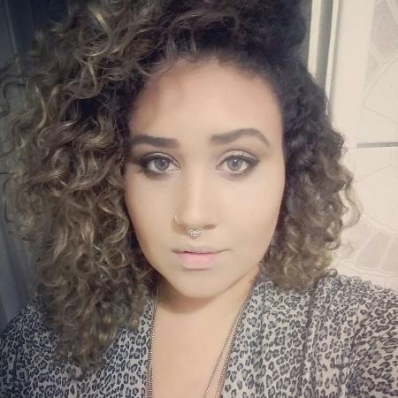 Segundo Ana Cristina, a pele melhorou com a raspagem imagem: Arquivo pessoal