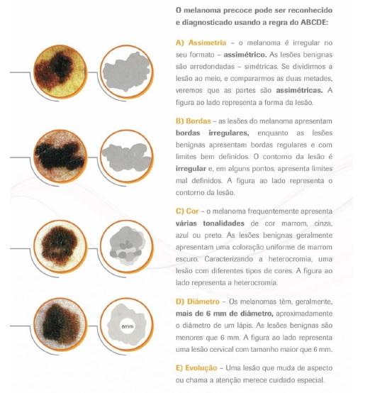 Autoexame de pele - Grupo Brasileiro de Melanoma